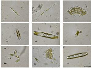 Despois de ler este artigo non mirarás as microalgas do plancto do mesmo xeito